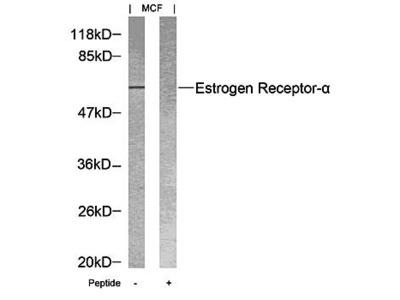 alpha Estrogen Receptor antibody