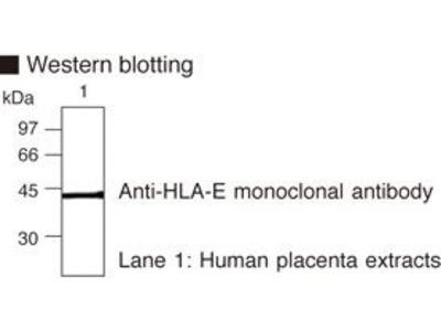Anti-HLA-E (Human) mAb