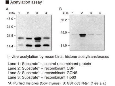 Anti-Acetylated Histone/p53 (Lys382) mAb