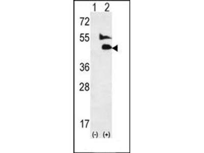 BMP9 antibody