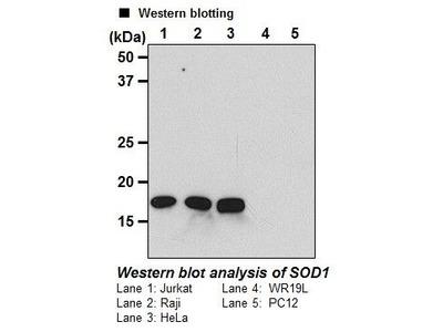 Anti-SOD1 (Human) mAb