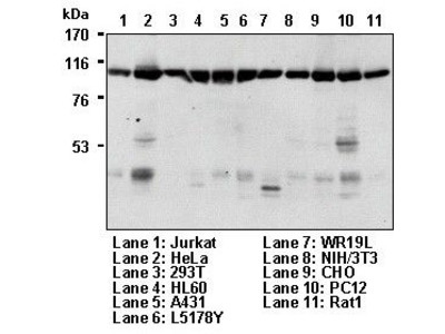 Anti-Transportin 1 (Karyopherin beta2) (Human) mAb