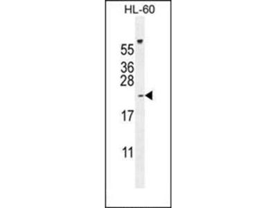 PLA2G2C antibody