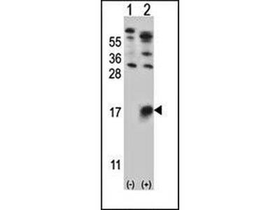 GYPB antibody