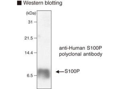 Anti-S100P pAb