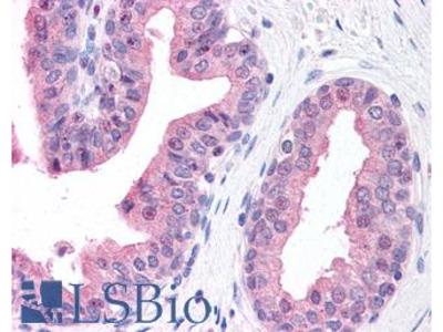 CKAP5 / ch-TOG Antibody