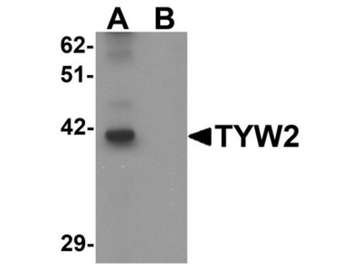 TYW2 / TRMT12 Polyclonal Antibody