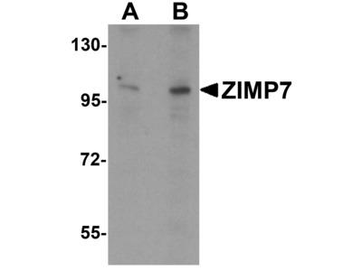 ZIMP7 / ZMIZ2 Polyclonal Antibody