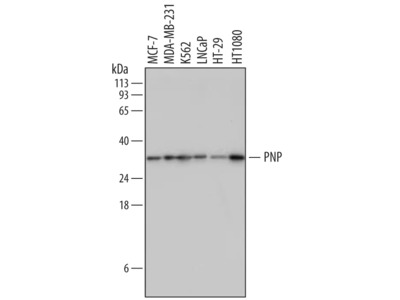 Purine Nucleoside Phosphorylase / PNP Antibody