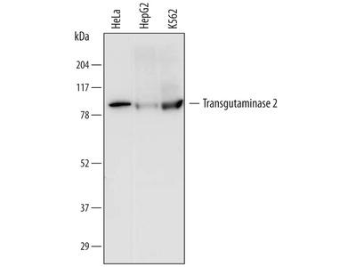Transglutaminase 2 / TGM2 Antibody
