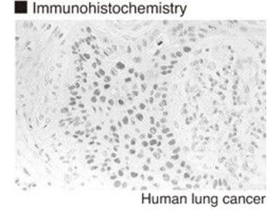 Anti-p53 (Human) mAb