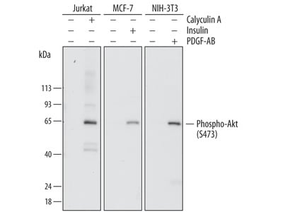 Human / Mouse Phospho-Akt (S473) Pan Specific Antibody