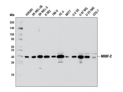 NRBF-2 (D8G1) Rabbit mAb