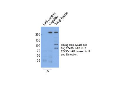 CEP290 antibody