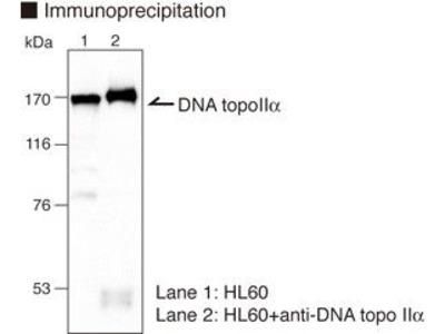 Anti-DNA Topoisomerase IIalpha (Human) mAb