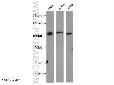 NFKB2 antibody