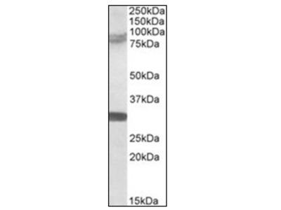 RNF86 (TRIM2) (758-771) goat polyclonal antibody, Aff - Purified