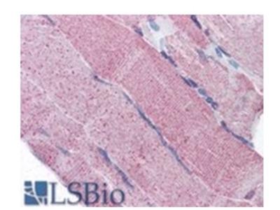PACE4 (PCSK6) goat polyclonal antibody, Aff - Purified