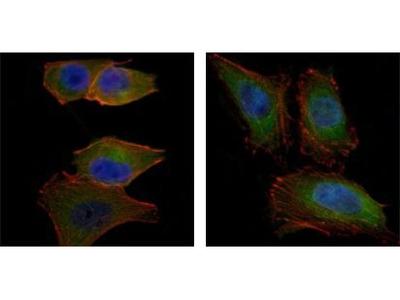 AKT2 Monoclonal Antibody (1B6)