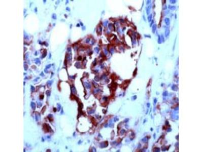 anti CD227 / Mucin-1 / MUC1