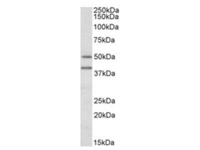 anti TRAIP / RNF206 (C-term)