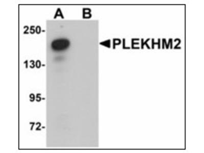 anti PLEKHM2 (C-term)