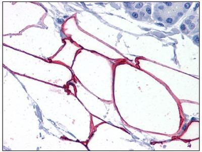 anti Perilipin-4