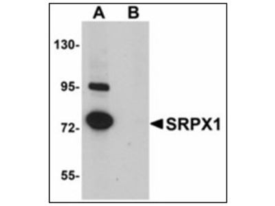 anti SRPX / ETX1 (N-term)