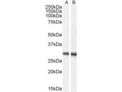 Parvalbumin Polyclonal Antibody