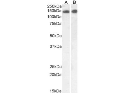 Leptin Receptor Polyclonal Antibody