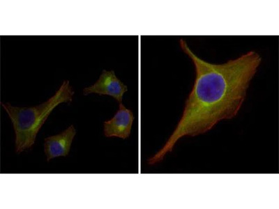 Cytokeratin 15 Monoclonal Antibody (6E7)