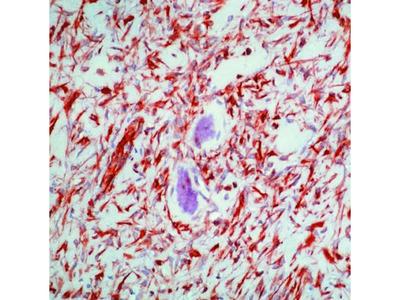 Vimentin Monoclonal Antibody (V9), Biotin