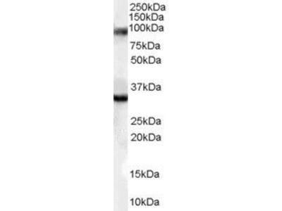 LDB3 Polyclonal Antibody