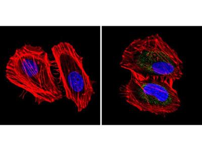 Cytokeratin Pan Monoclonal Antibody (C-11)