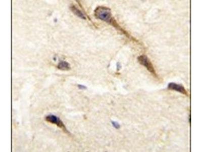 CYP26B1 Polyclonal Antibody
