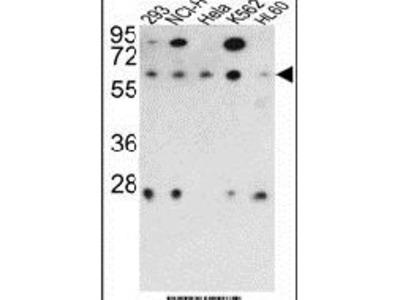PPP2R3B Polyclonal Antibody