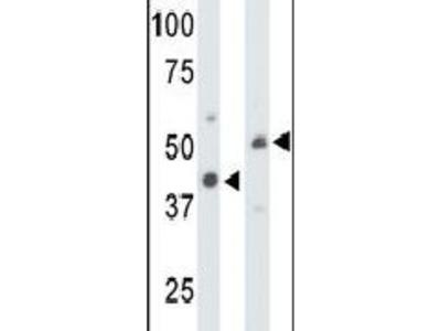 Creatine Kinase MT Polyclonal Antibody