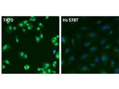 Estrogen Receptor alpha Polyclonal Antibody