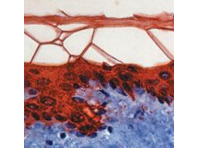 Cytokeratin 10 Monoclonal Antibody (DE-K10)