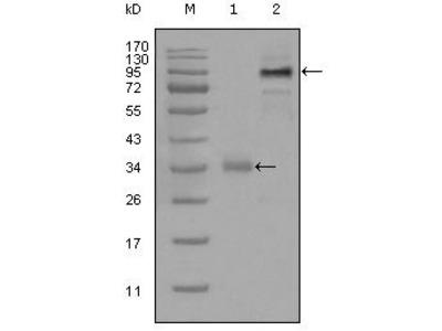 ETV1 Monoclonal Antibody (1C8B6)