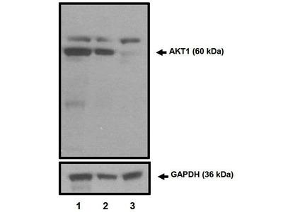 AKT1 Monoclonal Antibody (G.668.2)