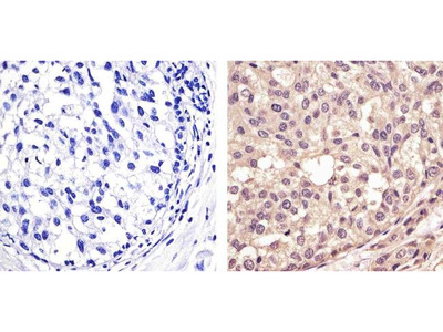 p53 Antibody Cocktail