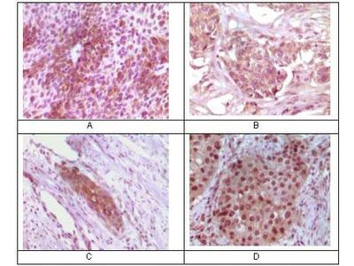 RAB25 Monoclonal Antibody (3F12F3)