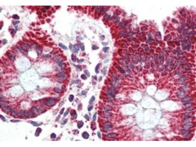 TSPO Polyclonal Antibody