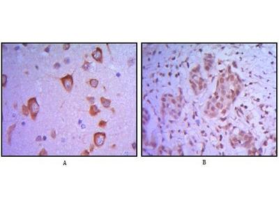 ETS1 Monoclonal Antibody (10D2)
