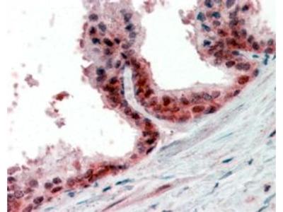 PPP4C Polyclonal Antibody