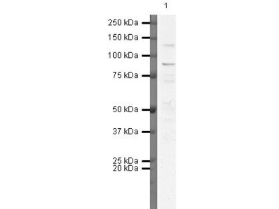 FGFR3 Polyclonal Antibody