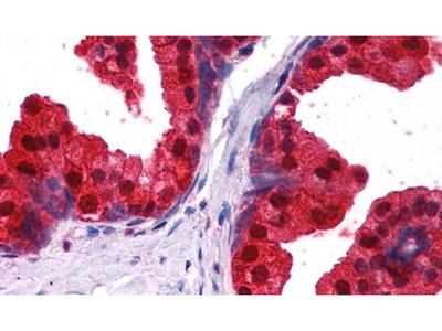 NDRG1 Polyclonal Antibody