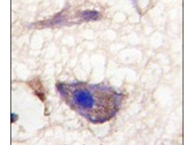NPTX1 Polyclonal Antibody