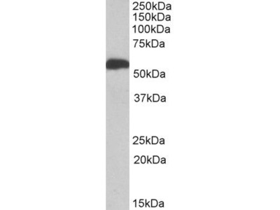 ALDH5A1 Polyclonal Antibody